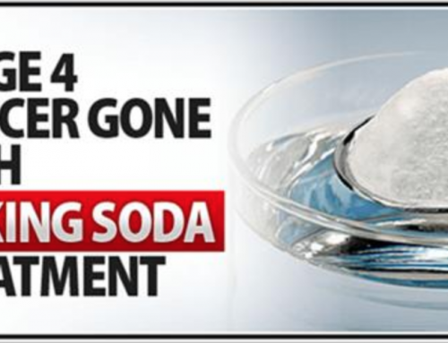 Oncologists Won't Tell You That Baking Soda Treats Cancer Just Because It'll Cut Down The Profits Of Big Pharma!